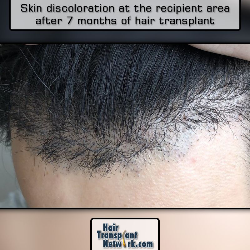 Why does #skin at the #recipient #area still not look # ...
