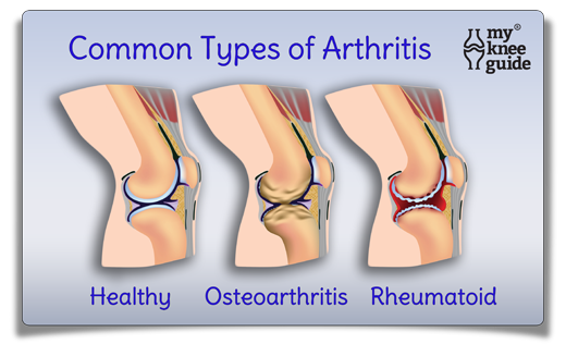 remedy for gout in ankle foods to eat to avoid uric acid foods to avoid when you have gouty arthritis