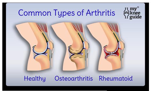 Arthritis Osteoarthritis and Rheumatoid arthritis