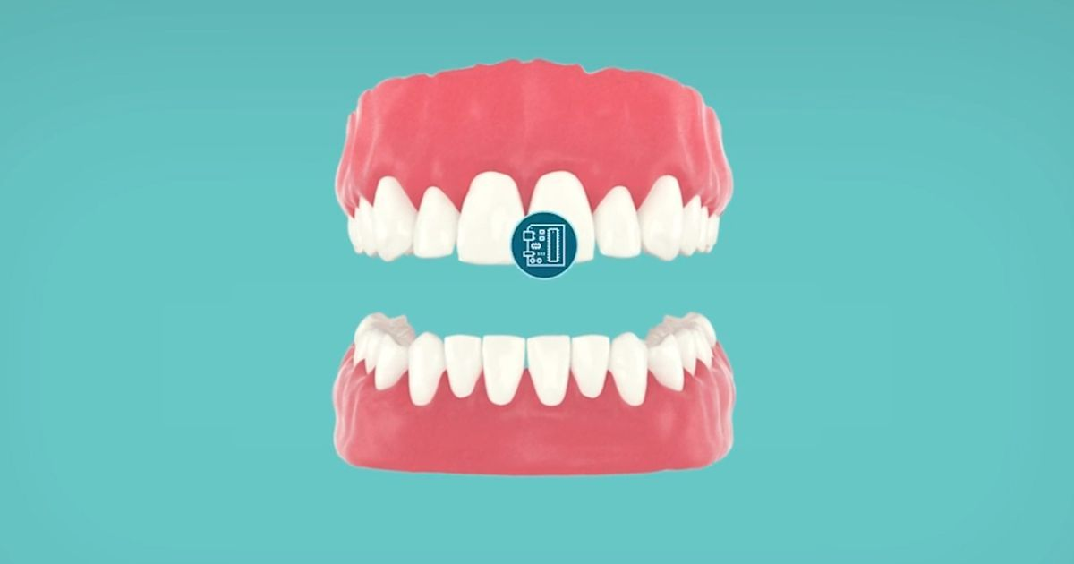 Scientists are developing a tooth sensor that could change ...