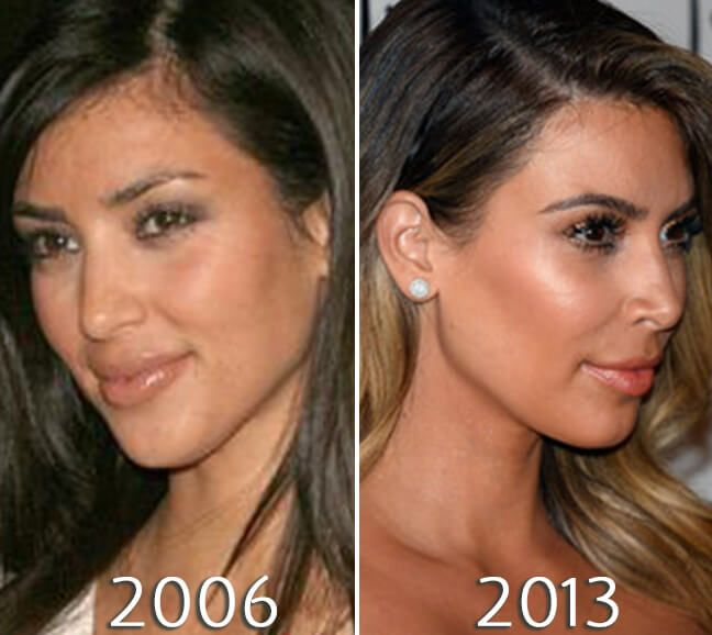 kim kardashian nose before and after kim kardashian before and after pinterest. Black Bedroom Furniture Sets. Home Design Ideas