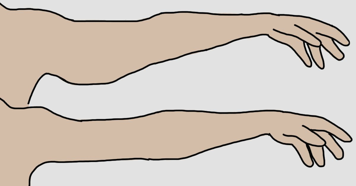 how to get rid of bumpy arms