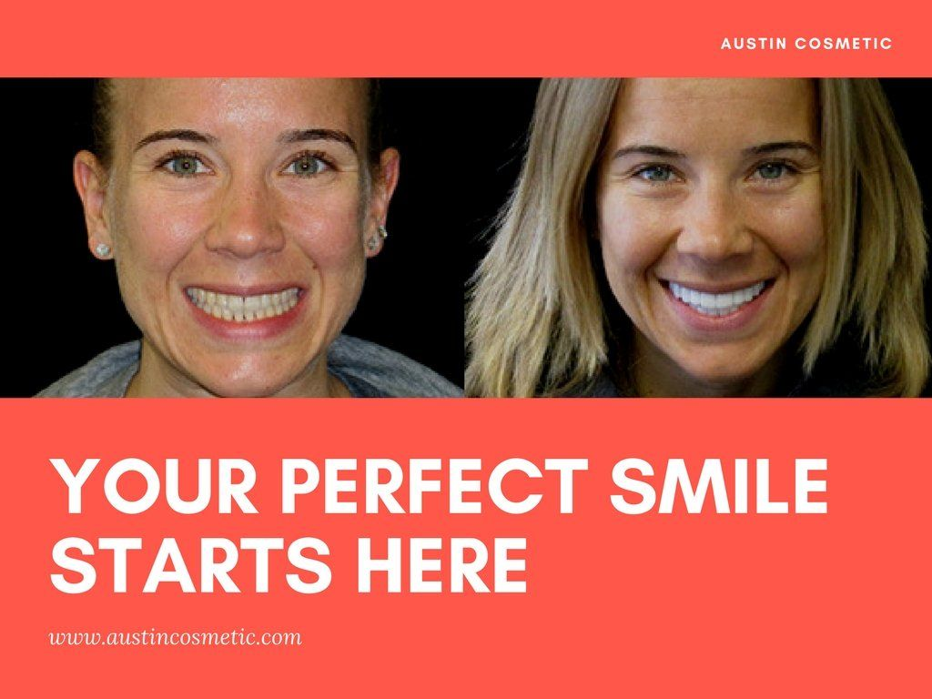 Your smiles is the one of the first things most people see, that's why at Austin Cosmetic Dentistry we offer the a list of procedures to give you that perfect smile you've always wanted.