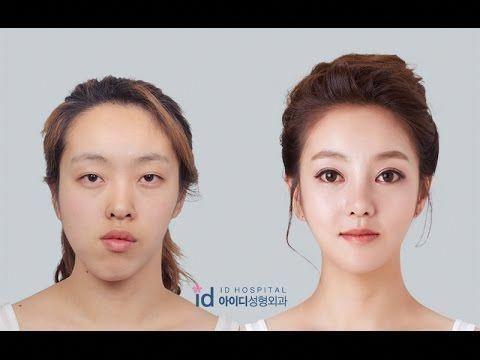 Correct facial asymmetry