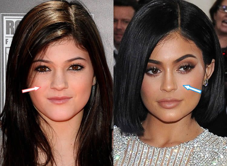 Kylie Jenner - Nose Job - before and after surgery ...