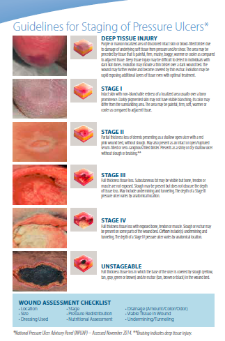 Pressure ulcer staging wound care pinte