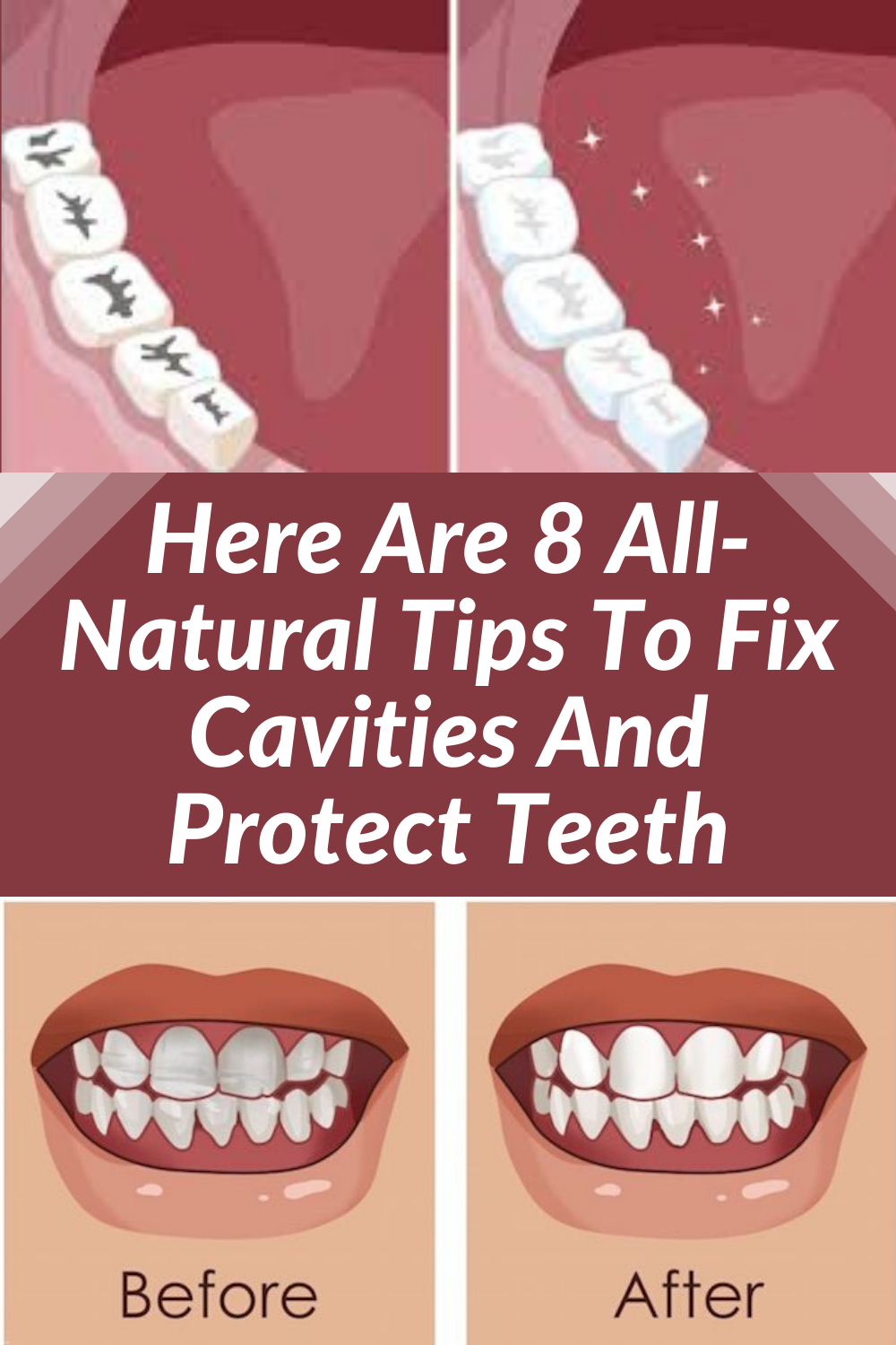 Reverse Cavities And Heal Tooth Decay Without Drilling Using These 8 All Natural Dental Tips Cavities Heal Cavities Tooth Decay