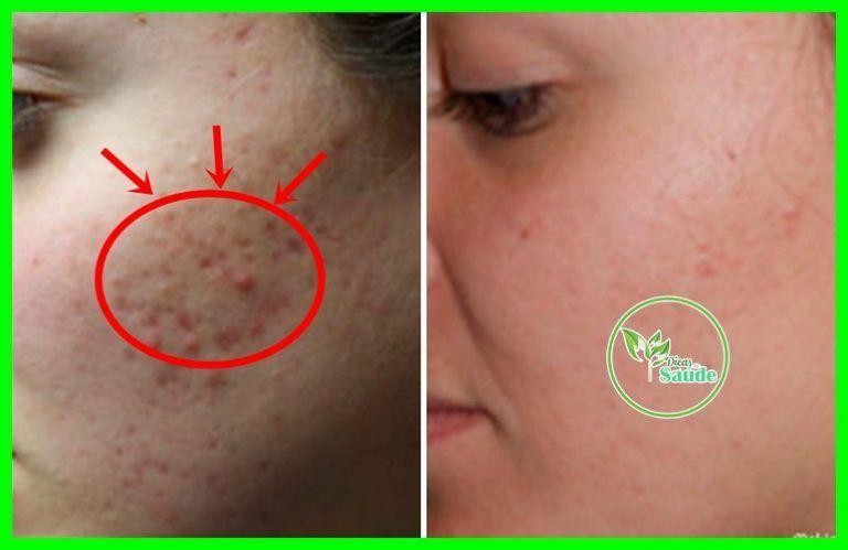 Como Remover Cicatrizes Da Acne Naturalmente Em 5 Dias