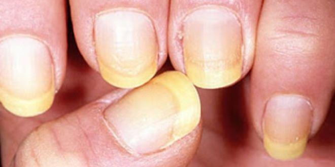 Yellow Nail Syndrome Light Deep Severe Causes How To Get Rid Of Nails Home Remedy Treatment