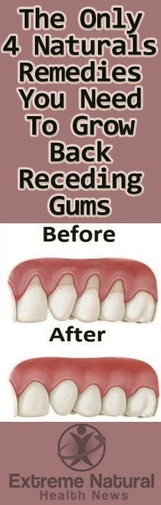 Grow Back Your Receding Gums With These Home Remedies | Valuable tips and Tricks  #receding #remedie...
