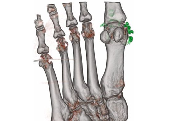 Dual Energy composition analysis identifies uric acid crystal deposits in 1st metatarsal-phalangeal joint and surrounding tissues shown highlighted in green.