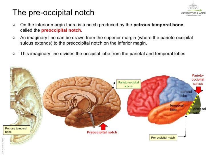 preoccipital notch - google search | neuroanatomy | pinterest, Human Body