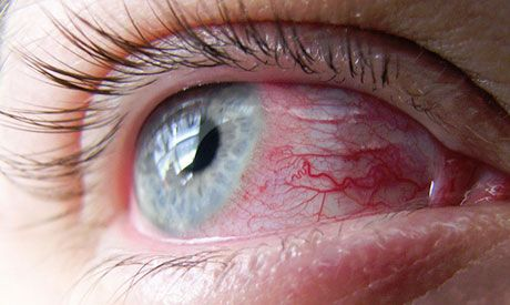 4 Herbal Remedies To Soothe Dry Itchy Eyes Itchy Eyes Scratched Cornea Allergy Eyes