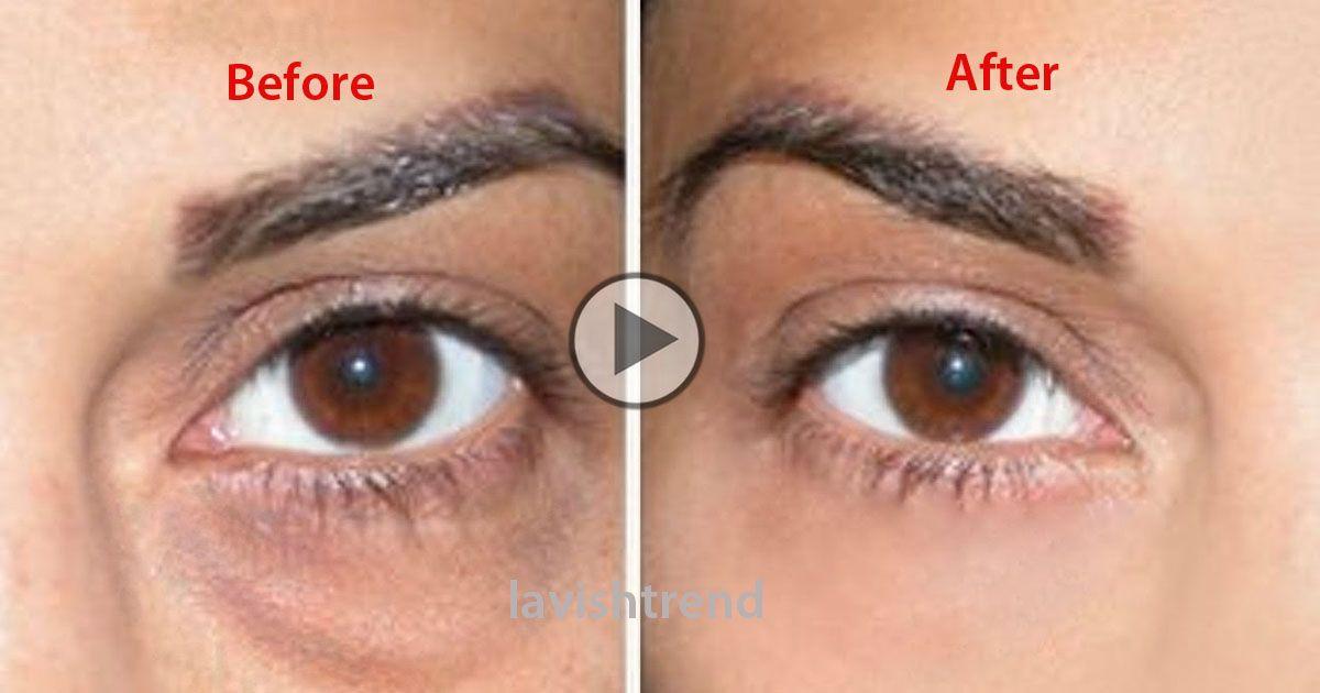 How To Cover Dark Circles + Under Eye Bags | Dark circles ...