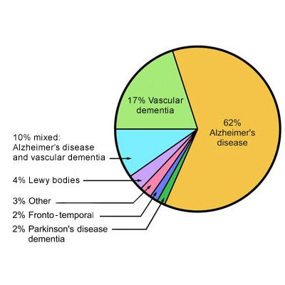 aetiology of dementia by frequency