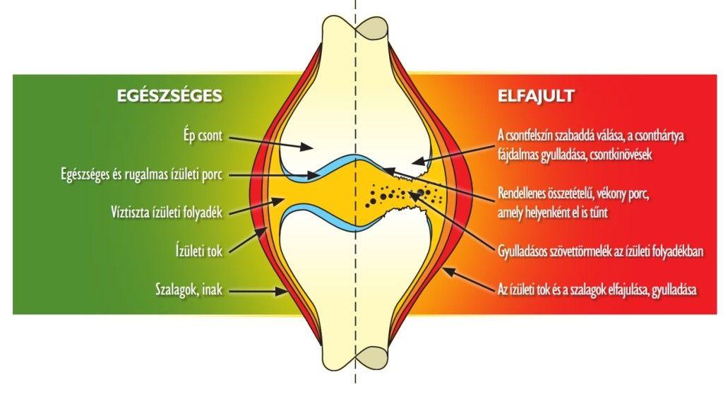 az ízületek fájnak az évek során metatarsofalangealis artrosis a 2. fokú kezelés során
