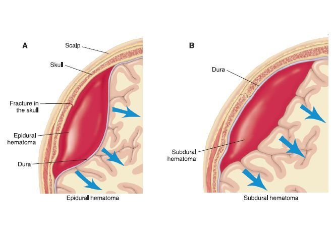 Subdural Hematoma And Epidural Hematoma Nursing Pinterest