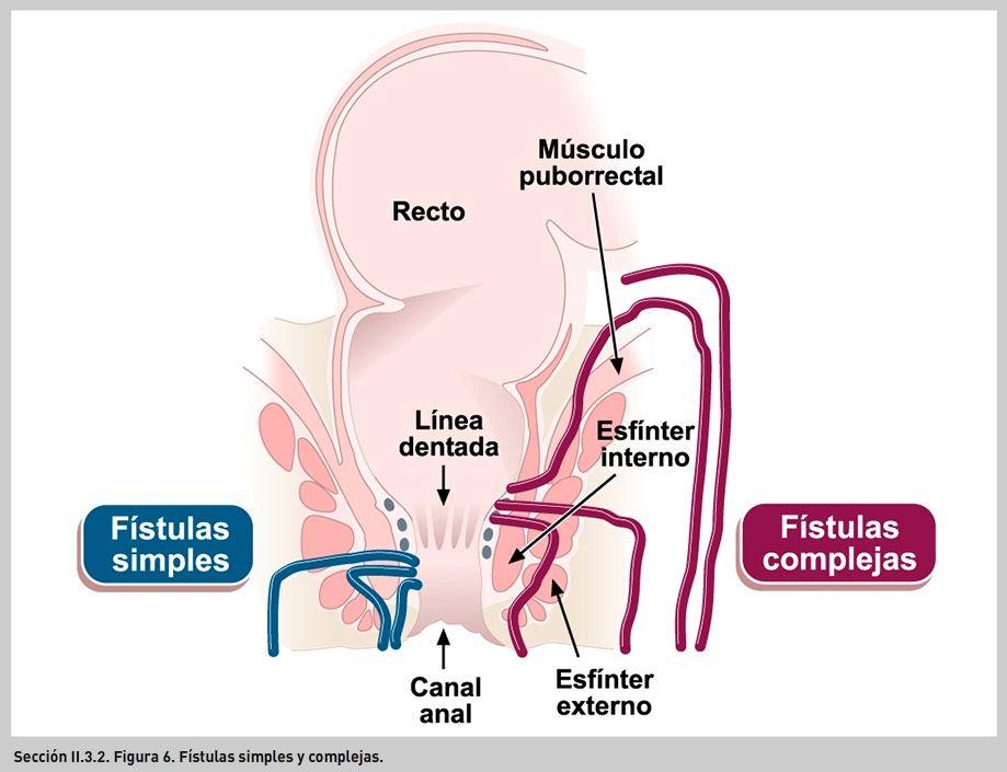 FIGURA 6. Fístulas simples y complejas. | UMSNH | Pinterest ...