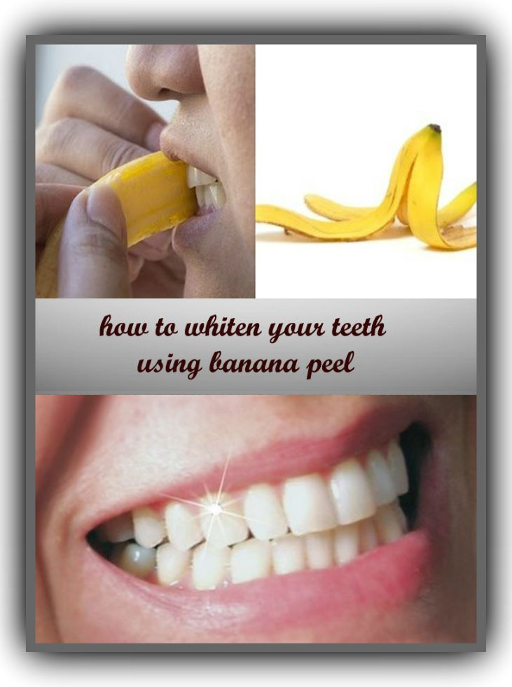 How To Whiten Your Teeth Without Damaging Them Health And Beauty