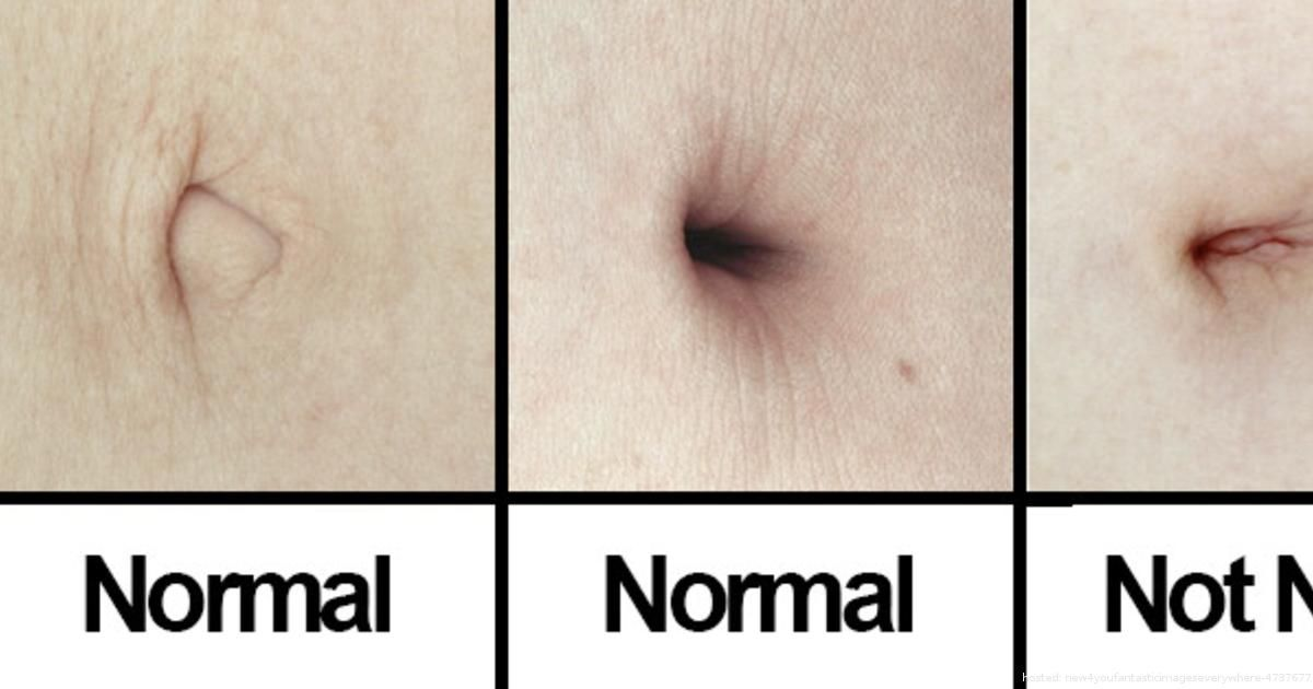 Who knew the belly button could be such a terrible place? | From fantasticimageseverywhere