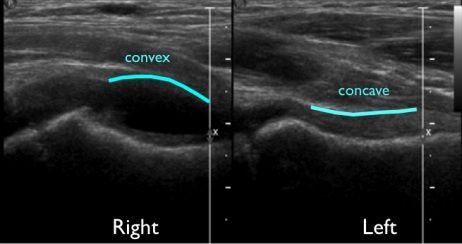 pediatric hip ultrasound for effusion | Sonography! | Pinterest ...