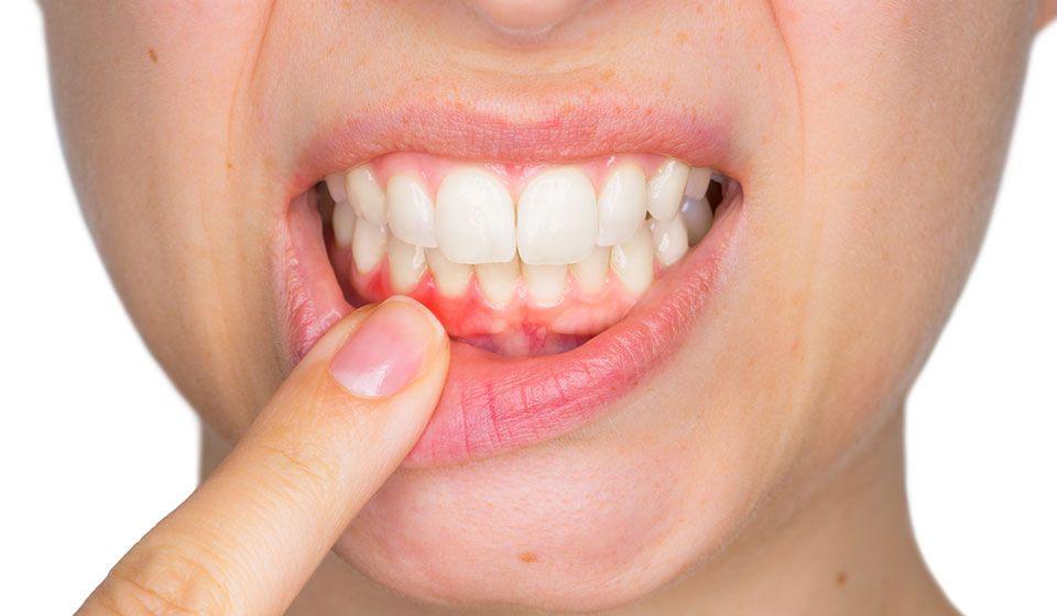 كيفية علاج التهاب اللثة Gum Treatment Affordable Dentist Oral Health