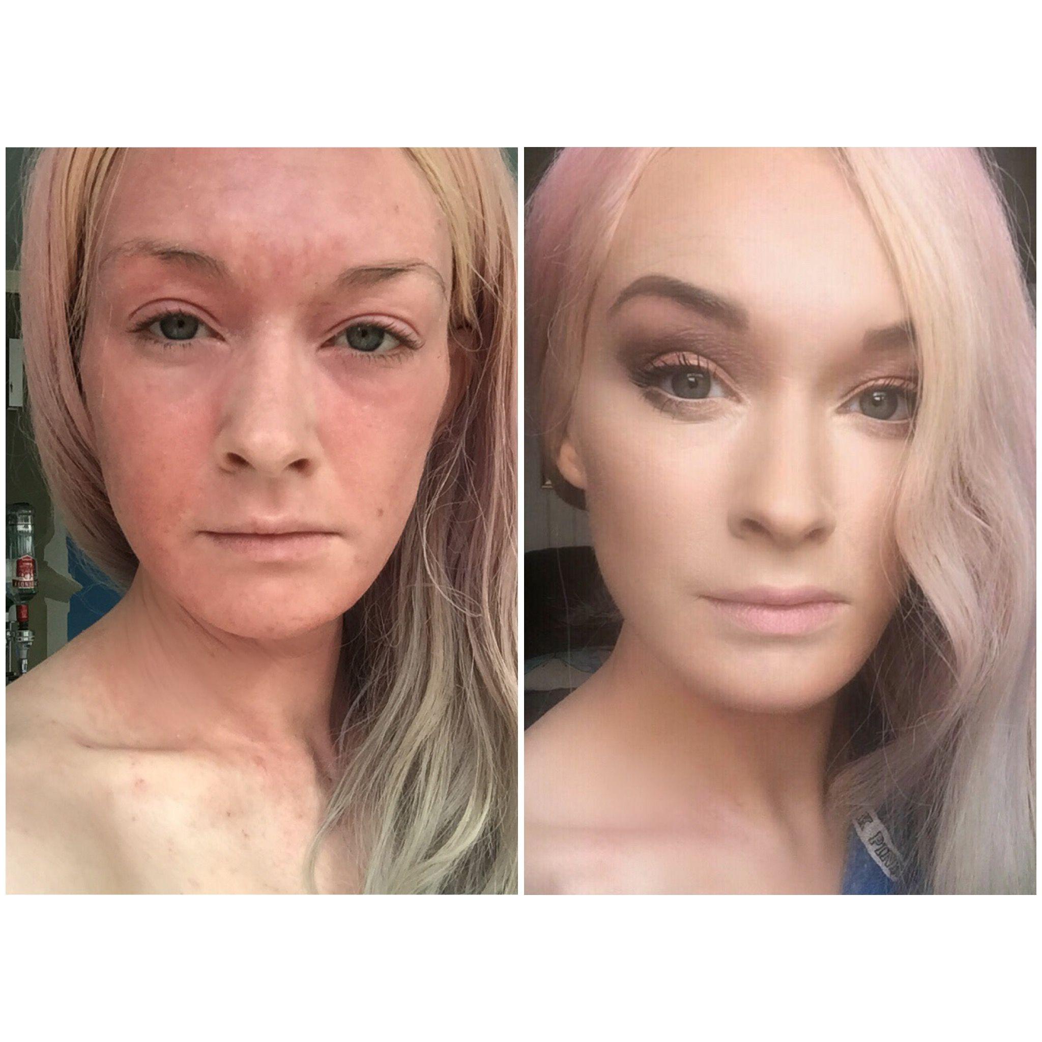 MUA makeup, eczema skin problems. Dry skin. Instagram