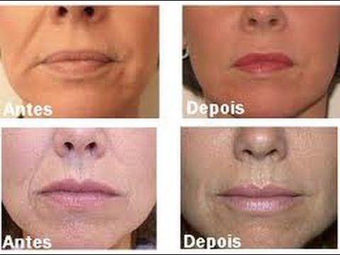 Hqdefault 1 Jpg 480 360 Com Imagens Botox Botox Rosto
