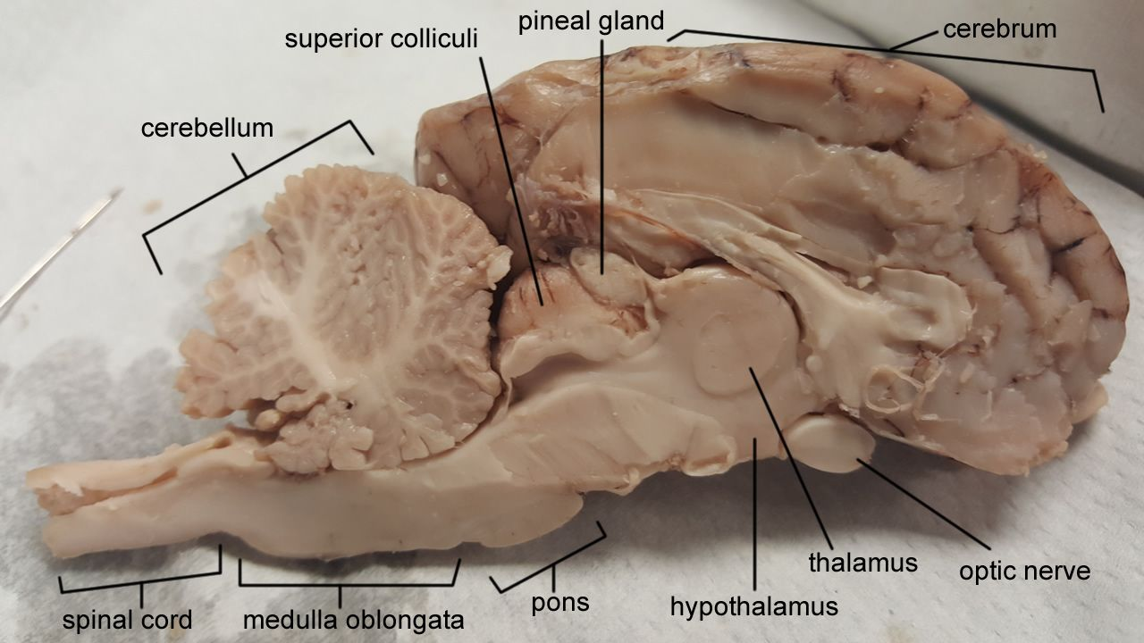 Labeled Brain Brain Anatomy Human Anatomy And Physiology Anatomy And Physiology