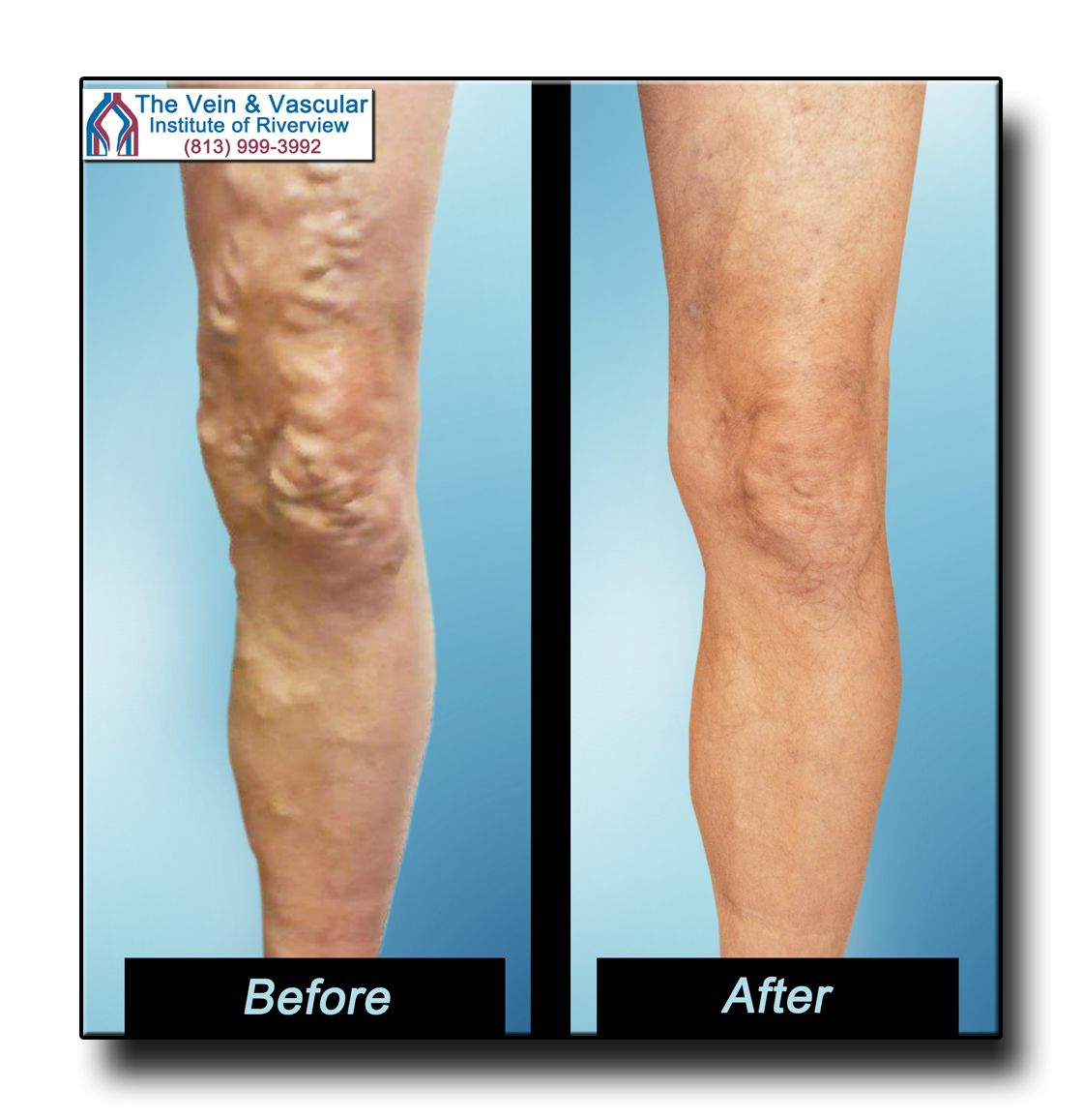 Riverview Varicose Vein Removal Before And After Pictures 813 999 3992 Varicose Vein Removal Varicose Veins Laser Treatment