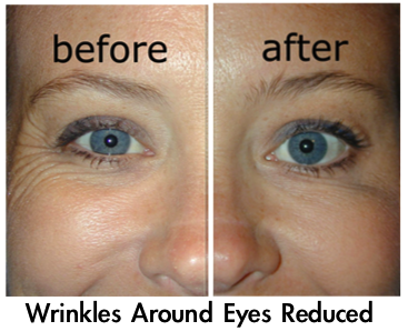 Argireline Wrinkle Cream Best Wrinkle Solution Anti Wrinkle Cream
