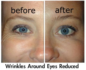 Argireline Wrinkle cream best, Wrinkle solution, Anti
