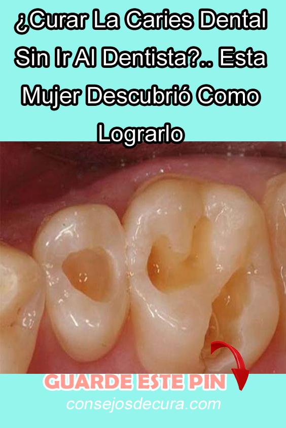 Curar La Caries Dental Sin Ir Al Dentista Esta Mujer Descubrió Como Lograrlo Caries Dental Curar Las Caries Caries