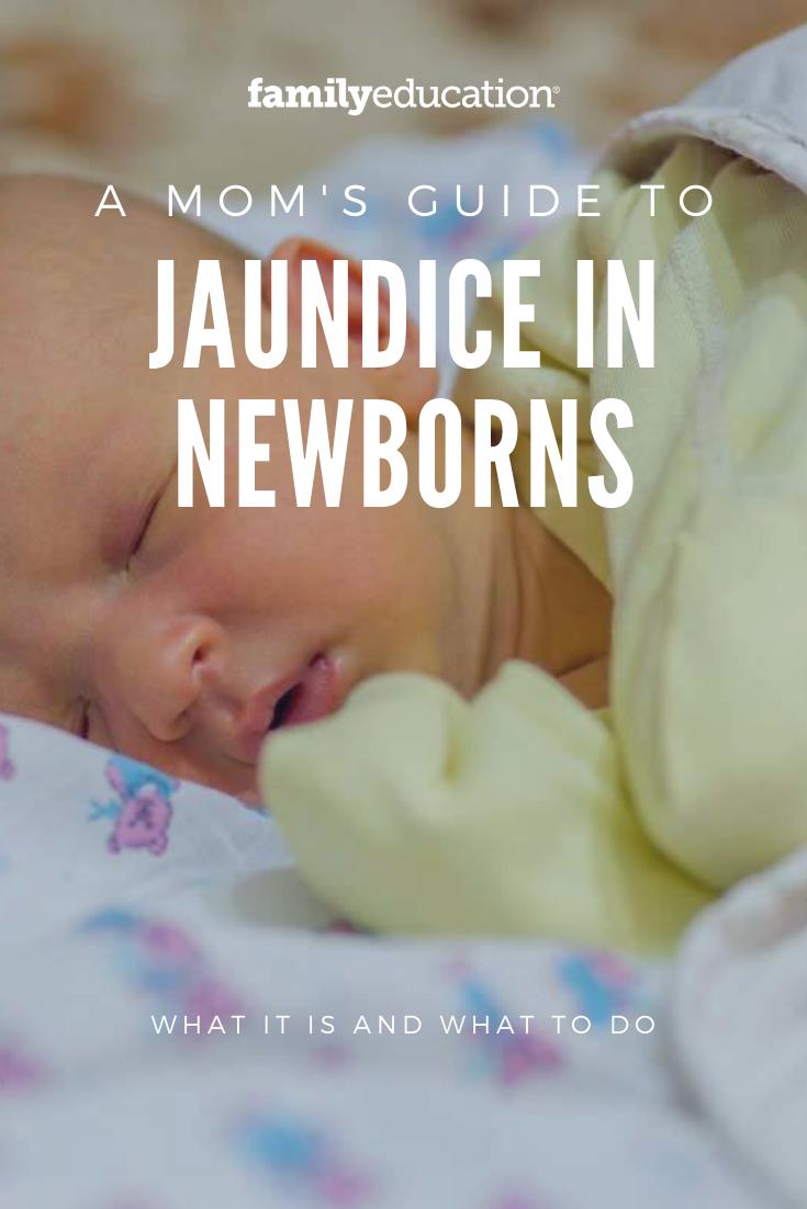 Causes Symptoms And Treatments Of Jaundice In Newborns Jaundice