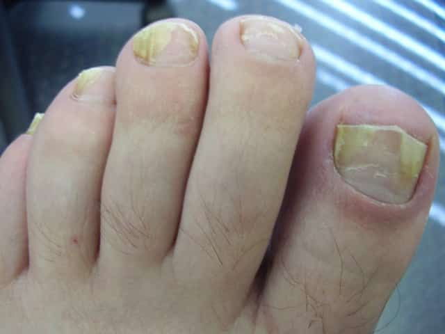 What is Toenail Fungus? Onychomycosis or in much simpler terms, nail ...