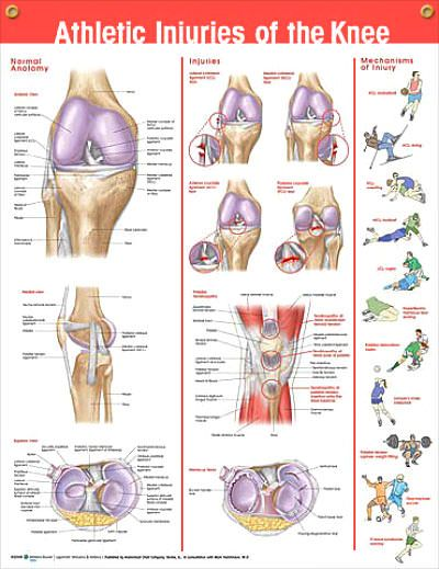 Athletic Injuries Of The Knee Chart 20x26 Doctors Anatomy Posters