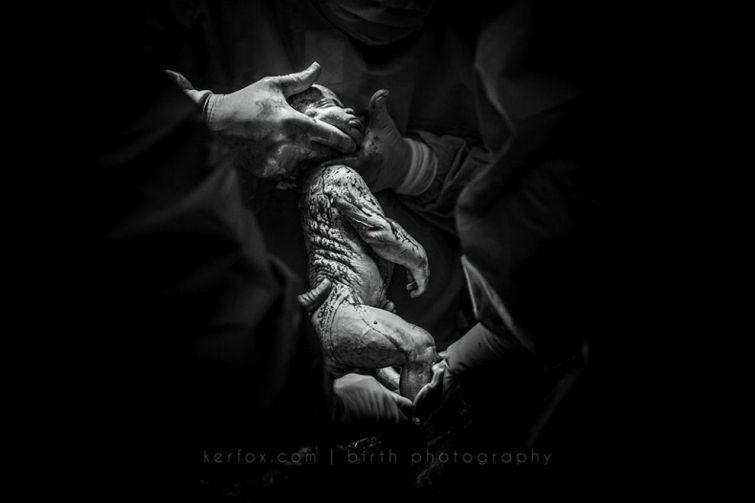 Мощные фото с конкурса фотографий родов «Birth Photo ...