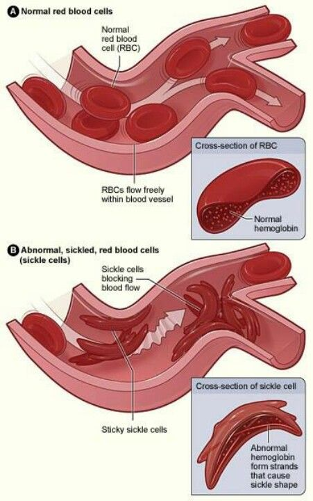 http://www.jscimedcentral.com/Hematology/ #hematology, #transfusion ...