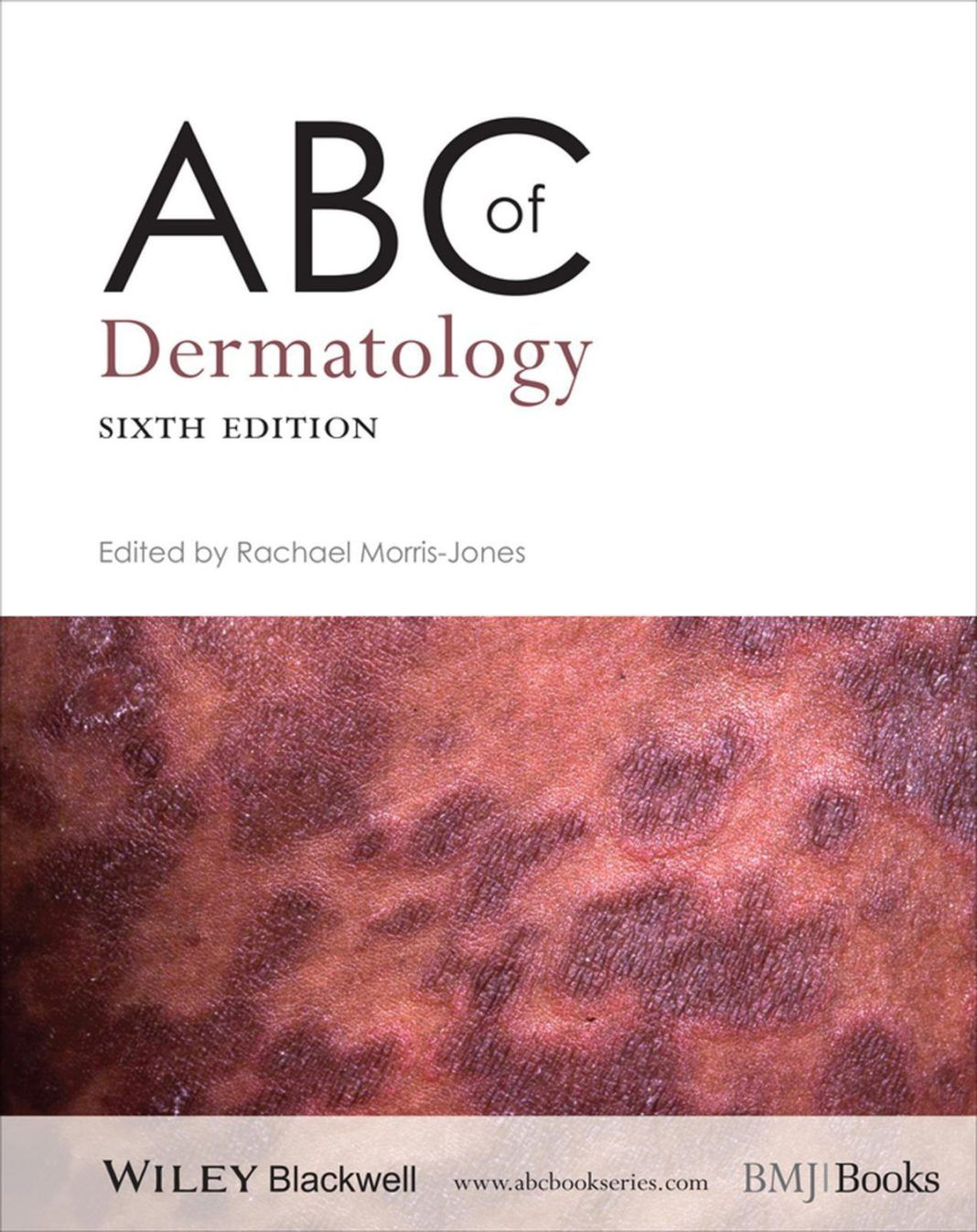 ABC of Dermatology (6th Edition) PDF Free Download (With