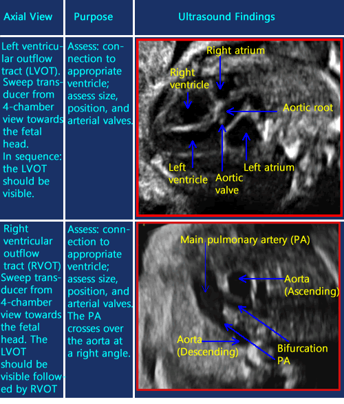 ultrasound of right ventricular overflow of fetal heart | Сердце ...