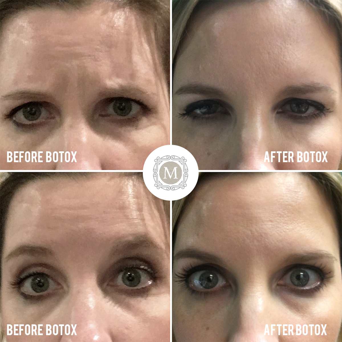 This Patient Had 40 Units Of Botox For Forehead Wrinkles Frown Lines Lines Between The Brow And Crows Feet Botox Forehead Hide Wrinkles Forehead Wrinkles