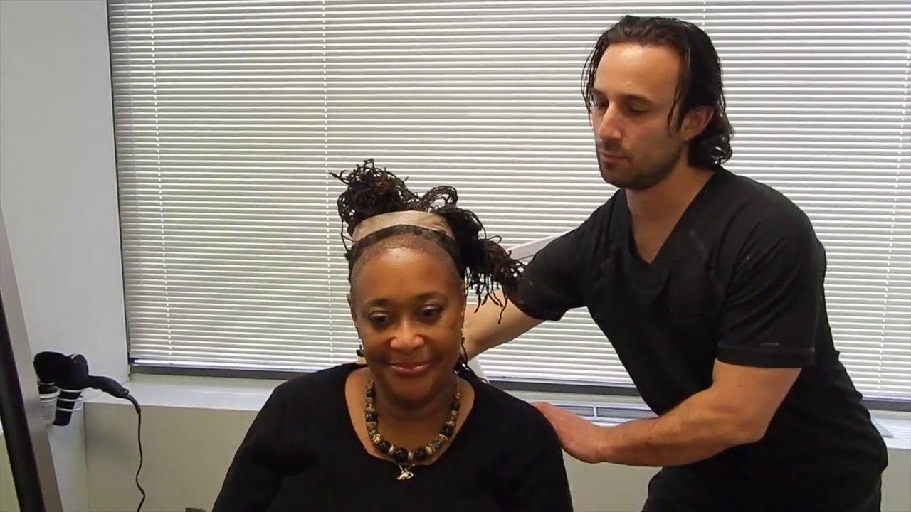 Natural Hair Transplants Traction Alopecia Hair