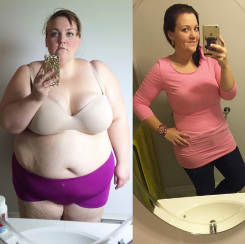 Gastric Bypass Before And After Mallory # ...