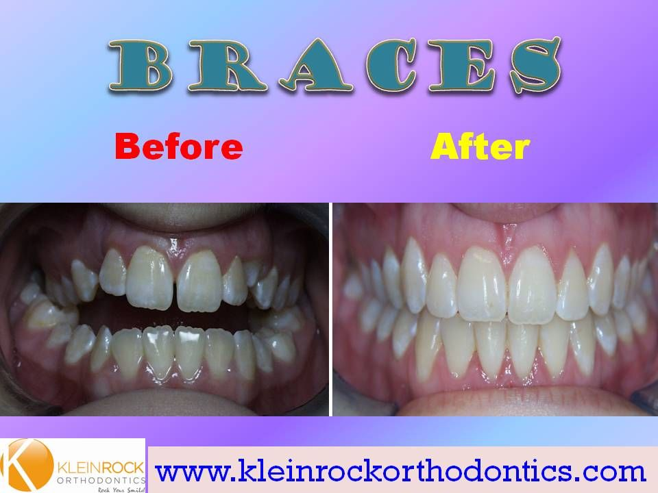 Severe anterior open bite Braces before and after, After