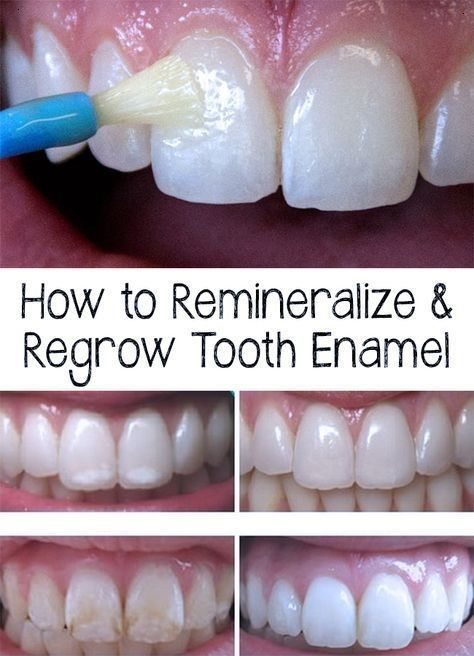 how to get the enamel back on your teeth