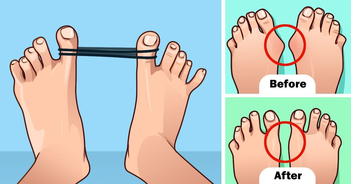10 ways to prevent bunions bunion health matters get