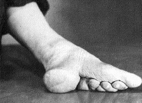 Asian feet snow white