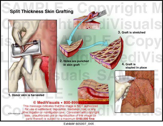 All Medical Visual Options One Source 404 Skin Grafting Medical Illustration Medical
