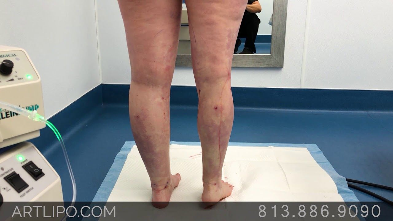 Lipedema surgery lipo 360 cankles knees ankles