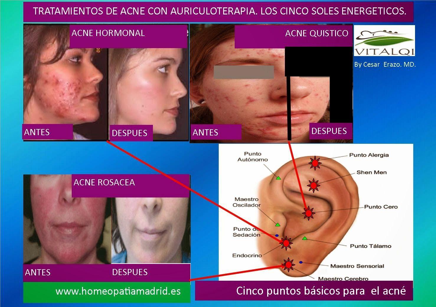 Auriculoterapia para adelgazar antes y despues